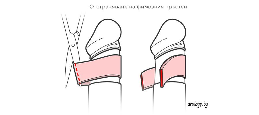 fimoza-obrqzvane-circumciziq