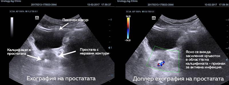 ehografiq-prostatata-infekciq