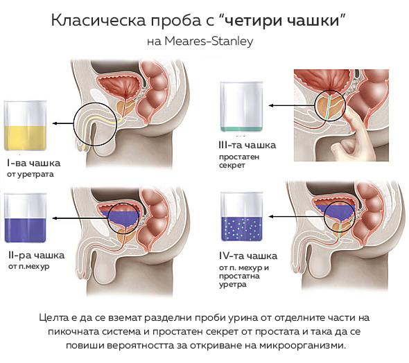 proba-za-bakterii-prostatit