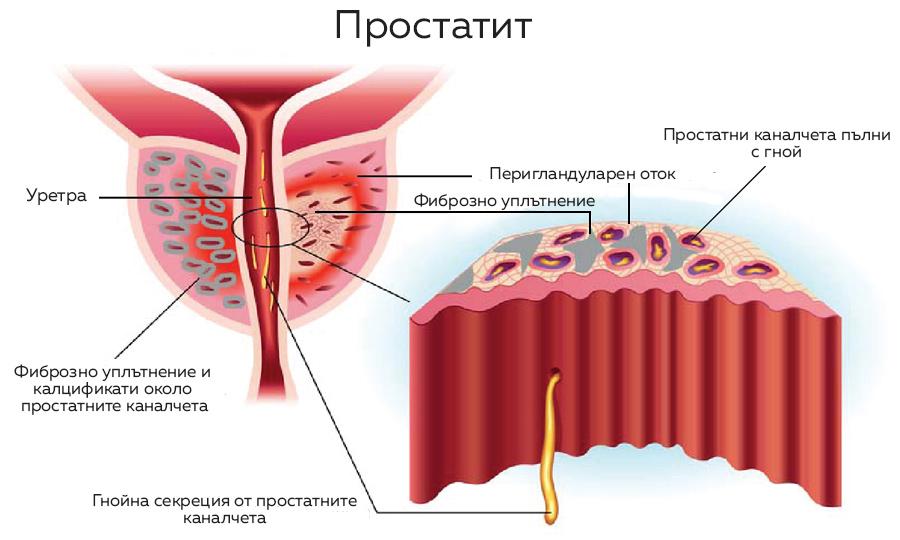 prostatit-anatomiq-vuzpalenie