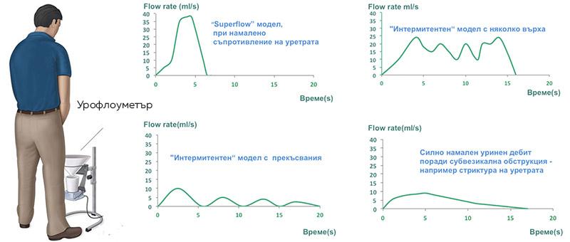 urofloumetriq-prostatit-urology-bg